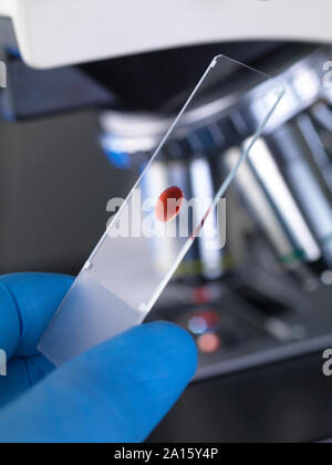 Scientist examining a glass slide containing a human sample under a microscope - Stock Photo