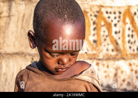 Young Masai child looks downward as tsetse fly hovers near his eye. - Stock Photo