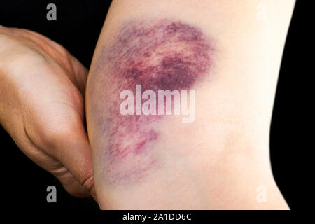 Close up of a hematoma on woman arm near elbow. - Stock Photo