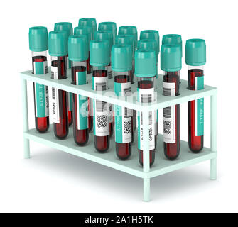 3d render of Liver Panel blood test tubes in container over white background - Stock Photo