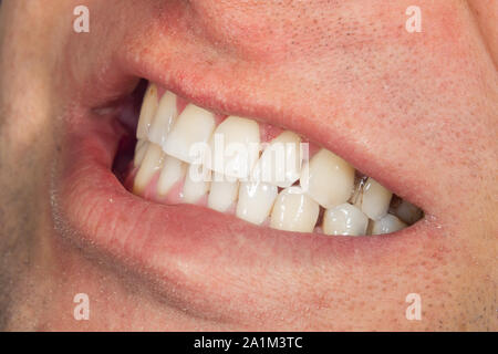 teeth whitening close-up macro. Hygiene of human oral cavity after admission to the dentist - Stock Photo