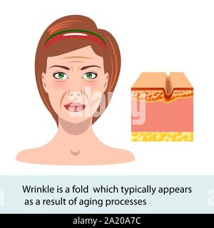 infographic skin illustration. Wrinkle, change of the face, vector - Stock Photo