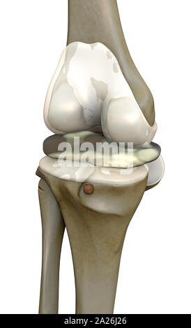 human joint destruction, 3d rendered knee illustration, pain illustration knee side, 3d illustration knee side, - Stock Photo