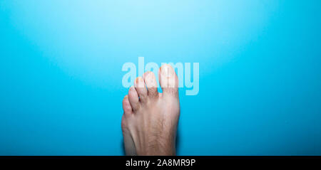 Close up view of toenail infection on hairy man foot - Stock Photo
