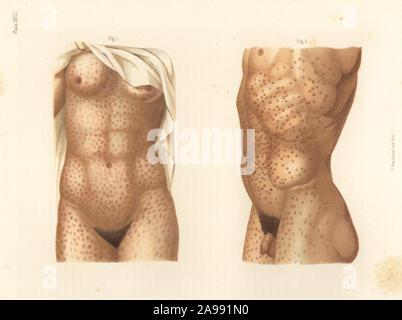 Secondary period syphilis symptoms on the body. Maculated erythema on the torso after mercury treatment 1, and papular erythema before treatment 2. Chromolithograph by T. Sinclaire from Freeman J. Bumstead's Atlas of Venereal Diseases, Henry C. Lea, Philadelphia, 1868. First American edition of Auguste Cullerier's Precis iconographique des maladies veneriennes. - Stock Photo
