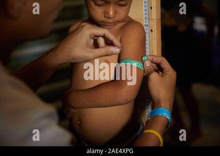 Caracas, Miranda, Venezuela. 29th Nov, 2019. A child has his arm measured to see if he has signs of malnutrtion as part of a medical check up by volunteers. A major crisis is happening in the South American country of Venezuela. A corrupt government and massive inflation has caused a major lack in healthcare. Those in poor slums are suffering heavily. Some NGO's are trying to help as much as they can. One such NGO is Impronta Venezuela. Impronta is a Venezuelan non-profit organization that was born with the purpose of transforming the reality that challenges us, providing opportunities fo - Stock Photo