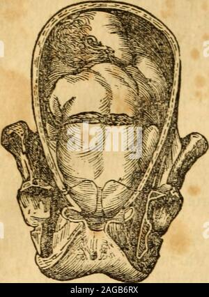 . The principles and practice of obstetricy, as at present taught, by James Blundell ... To which are added, notes and illustrations. By Thomas Castle ... pushedto the external parts, in the same manner as inordinary labors the head is pushed down into the outlet, and to these effortswe ought to trust. And when in this manner the breech has gradually de-scended, so that it lies at the outlet, you may then lay your finger upon theone side, and your thumb upon the other, and without violence, (a brutalerror always to be reprobated) with gentleness and firmness, co-operatingwith the pains, if the - Stock Photo