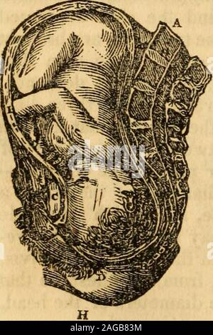. The principles and practice of obstetricy, as at present taught, by James Blundell ... To which are added, notes and illustrations. By Thomas Castle ... f the positionis not usually discovered in the earlv part of the labor, or even when the first stage is completed,the practitioner being generally satisfied with knowing that it is a presentation oi the head. Butwhen there is an unusual delay, perhaps without any very obvious cause it then becomes aduty to investigate and explore the cause; and it is not a very unfrequent thing to rind theface turned towards the pubes. This position is most - Stock Photo