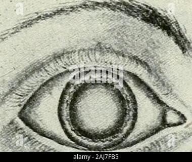 The commoner diseases of the eye : how to detect and how to treat them . Nuclear Cataract. Coitical Cataract. Cataract or opacity of the crystalline lens is the result of structural changes in the cells andfibres of which it is composed. Sometimes thesealterations of structure are irregularly dis-. ^ ?e^ - Stock Photo