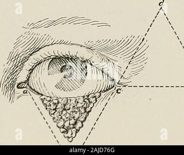 Surgical treatment; a practical treatise on the therapy of surgical diseases for the use of practitioners and students of surgery . Fig, 798.—Blepharoplasty. Fourth Step. Flap sewed in place and wound closed.. - Stock Photo