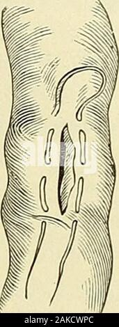 A manual of modern surgery : an exposition of the accepted doctrines and approved operative procedures of the present time, for the use of students and practitioners . Lateral anastomosis without the use of plates or buttons : first stage of the operation. (Richardson.) INTESTINAL ANASTOMOSIS. 653 Fig. 379.. - Stock Photo