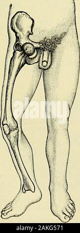 A manual of modern surgery : an exposition of the accepted doctrines and approved operative procedures of the present time, for the use of students and practitioners . Alliss test for shorteningin backward dislocation offemur. Fig. 305. Fig. 306.. - Stock Photo