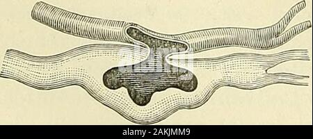 A manual of modern surgery : an exposition of the accepted doctrines and approved operative procedures of the present time, for the use of students and practitioners . Case of sacculated arteriovenous fistule of right thigh dueto gunshot wound of femoral vessels. (Authors Case.) Fig. 103. Fig. 104.. - Stock Photo