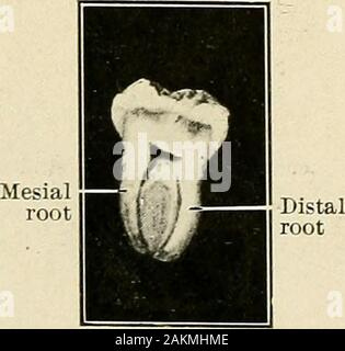 Principles and practice of operative dentistry . Fig. 548.—Inferior left secondmolar. Base of pulp-chamber,showing entrance to root-canals.. - Stock Photo