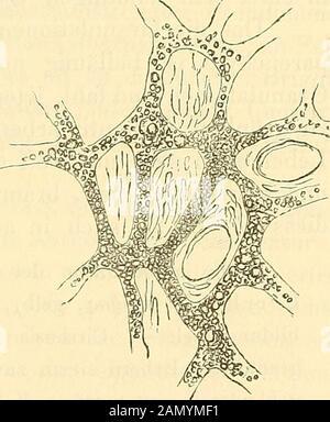 Lehrbuch der pathologischen Anatomie . in die Capillarenkolbig blind endigenden Pfort-ader-Gefässen durchsetzte hyali-ne, streifige kernreiche Binde-gewebsmasse, in welcher die Le-berzellen allmählig untergehen(Fig. 26); sie erscheinenz unächstvon einem molecularen Inhaltetrübe, schrumpfen mit Einrun-zelung und zerfallen, so, dass von einer leicht granulirenden Leber:em feinkörniger, mit Gallenpig- Massenzunahme des interlobularerv Bin-mentkörnchen untermischter (icte- degewebes mit erweiterten Gefäss-rischer) Detritus von der An- durchschnitten; die LeberzellenreihenOrdnung der Zellenreihen z - Stock Photo