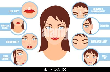 Vector portrait of a woman with plastic surgery infographics rhinoplasty, face lifting, blepharoplasty icons - Stock Photo