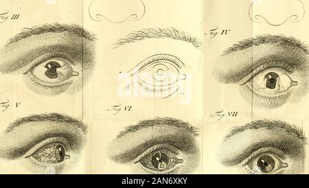 Praktische Abhandlung über die Augenkrankheiten, oder, Erfahrungen und Beobachtungen über die Krankheiten dieses Organs . 6 a ?*-&m ?/ VM - Stock Photo