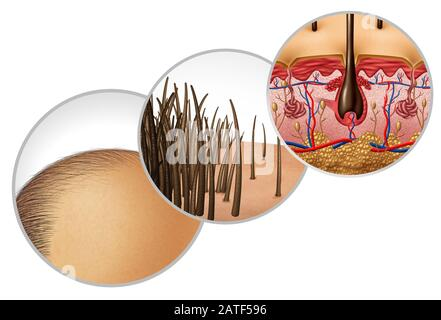 Hair loss diagram and baldness or bald head hair loss as a receding hairline cosmetic follicle thinning and alopecia as a close up of  skin anatomy. - Stock Photo