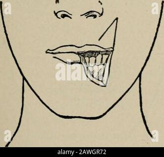 Operative surgery, for students and practitioners . Fig. 127.—Langenbeck Method of Re-storing the Lower Lip. An oval flap istaken from the region of the chin. Fig. 128.—Oval Flap is Raised and Su-tured into Place and the Defect thusClosed. of the skin to form the free margin of the new lip. The lateraldefect on either side is then closed. The scars that result are uponthe cheek.. - Stock Photo
