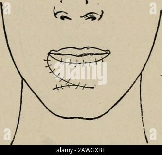 Operative surgery, for students and practitioners . Fig. 127.—Langenbeck Method of Re-storing the Lower Lip. An oval flap istaken from the region of the chin. Fig. 128.—Oval Flap is Raised and Su-tured into Place and the Defect thusClosed. of the skin to form the free margin of the new lip. The lateraldefect on either side is then closed. The scars that result are uponthe cheek. - Stock Photo