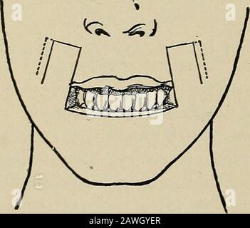 Operative surgery, for students and practitioners . ^ cut long, are sutured to the skin. Finally the semilunar. Fig. 125.—Bruns Method of Restoringthe Lower Lip. Dotted lines indicatethat the mucous membrane is cut longerthan the skin in order to provide amucous membrane border to the new lip. - Stock Photo