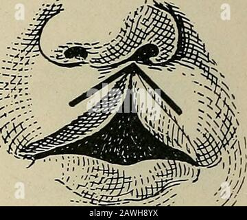 Operative surgery, for students and practitioners . Fig. 99.—Result After Suture. Fig. 100.—Malgaigne Operation forIncomplete Harelip. Paring and for-mation of flaps. into a vertical one its edges are united with several interruptedstitches. Malgaigne proposed to close the defect, especially where thedefect is considerable, by making use of flaps in addition to fresh-ening the edges. In his operation the tissue is removed from the - Stock Photo