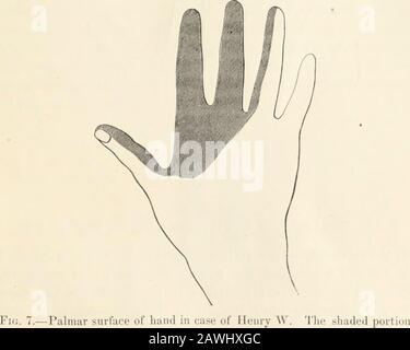 Transactions of the College of Physicians of Philadelphia . heaccident. The thumb, forefiuger, middle finger, and ringfinger to some extent, presented an cedematous appearance,were of a livid hue, and perceptibh* cooler to the touch thanother parts of the hand. The epidermis appeared to bethickened and lustreless, especially on these fingers, bothback and front, and on the part of the palm correspondingto them. It was now quite evident that there was some accident tothe median nerve. I made an examination, and found a IN.iriUKS (IK NK.KVK.S. 131 complete loss of sensation to hsirsh pricking wi - Stock Photo