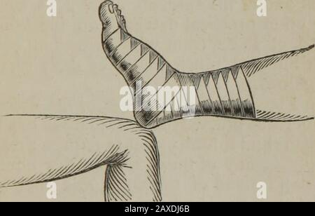 Minor surgery, or, Hints on the every-day duties of the surgeon . is kept as much backwardstowards the point of the heel as possible, as thebandage will not slip oft if drawn moderatelytight. If it is not necessary to cover in the heel,the turns may be as in the figure. Use. — This bandage may be resorted to wherewe wish to retain dressings to the heel or instep,or front of the ankle-joint, as in the excoriationsfrom the extending band of the apparatus forfracture of the thigh. It is also added to the Spiralof the Lower Extremity, where we wish to coverin the heel as well as the whole limb, as - Stock Photo