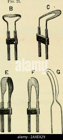 Electro-therapeutics: a condensed manual of medical electricity . Galvanic Scoops and Burners. very soon after the operation. A white heat gives lesspain than a red heat, but the latter is generally prefer-able. In respect to deformities, it may be briefly stated thatclub-foot is often benefited by improving the nutritionand function of the muscles. A few cases1 appear to bepurely functional, and can be cured without tenotomy.In lateral curvature, also, weakness of the spinal musclesis often an important element in the causation of the de-formity, and the faradic current furnishes a very ratio - Stock Photo
