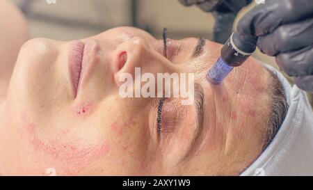 Needle mesotherapy treatment on a woman face. - Stock Photo