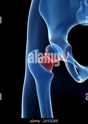 medical illustration of broken hip - Stock Photo