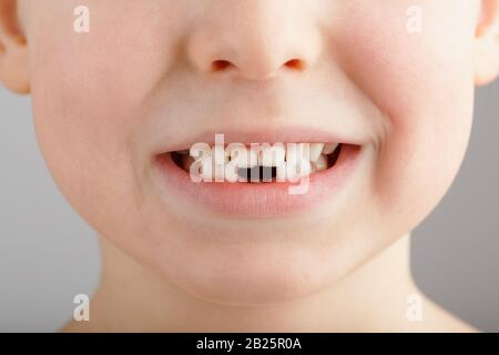 A child's smile without lower baby teeth. A hole in a child's smile. Fun concept. Dental service - Stock Photo