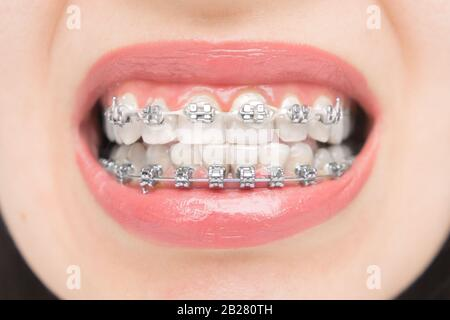 Close up to dental braces. Brackets on the teeth after whitening. Self-ligating brackets with metal ties and gray elastics or rubber bands