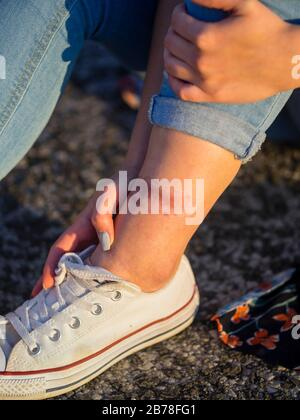 Heat wound on ankle leg painful crop cropped isolated view skin sneakers - Stock Photo