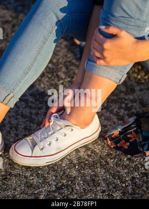 Heat wound on leg ankle painful crop cropped isolated view skin sneakers - Stock Photo