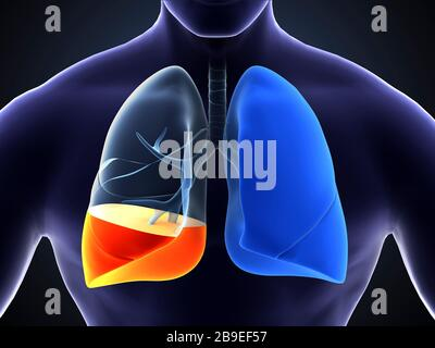Medical illustration showing pneumonia in the human lungs. - Stock Photo