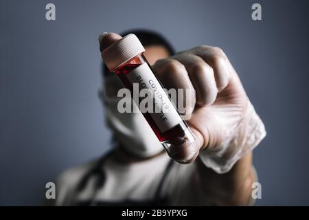 researcher with protective gloves and medical mask showing a test tube with blood sample infected with covid-19, concept of coronavirus research, sele - Stock Photo