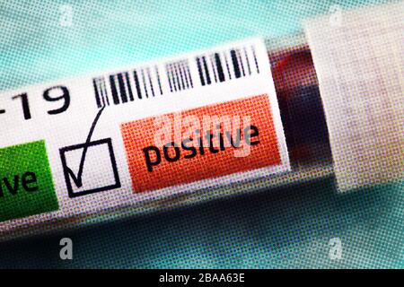 Covid blood sample tube 19 with positive Covid 19 findings, symbolic photo Coronavirus, Covid-19-Blutentnahmeröhrchen mit positivem Covid-19-Befund, S - Stock Photo