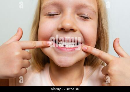 Kid showing the first milk tooth. Change teeth concept. Cute little girl with blonde hair on gray background - Stock Photo