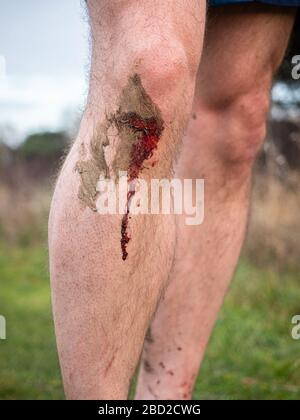 A runner's knee with a fresh bleeding wound after a running accident; blood trickles down the man's shin from a bloody knee. - Stock Photo