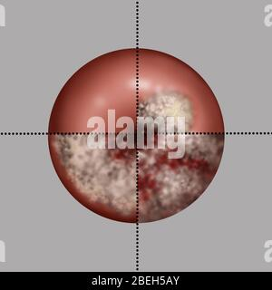 Cervical Cancer Progression, Illustration - Stock Photo