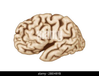 Brain affected by Alzheimer's disease.