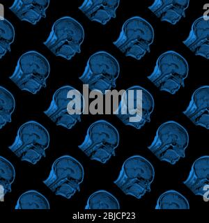 seamless pattern of MRI scans of sixty years old caucasian female head in sagittal or longitudinal plane - classic blue color on black background - Stock Photo