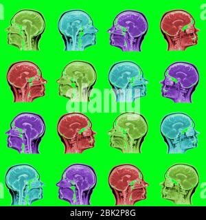 seamless pattern of MRI scans of sixty years old caucasian female head in sagittal or longitudinal plane - colored heads on acid green background - Stock Photo