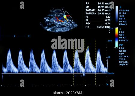 Colourful image of modern ultrasound monitor - Stock Photo
