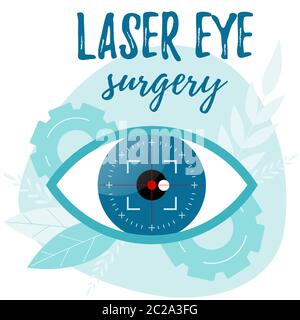 Vision correction by a laser beam. Eye surgery. Ophthalmologist vector illustration. - Stock Photo