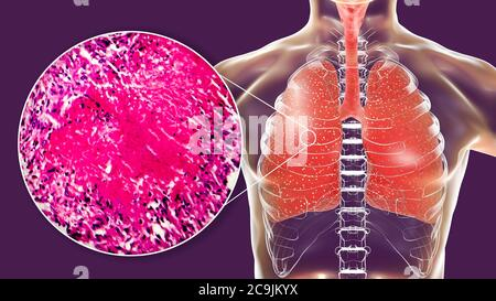Miliary tuberculosis, computer illustration and light micrograph. Miliary tuberculosis is a result of hematogenous dissemination of Mycobacterium tube - Stock Photo