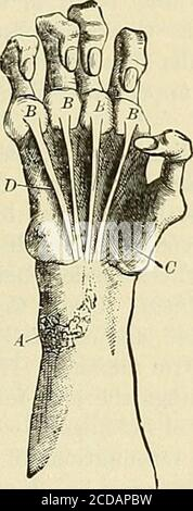 . The practice of medicine; a text-book for practitioners and students, with special reference to diagnosis and treatment . mb and its persistent ap-proximation to the second metacarpal bone produces the so-called ape-hand. Simultaneously, or almost simultaneously, the interossei begin PROGRESSIVE SPINAL MUSCULAR ATROPHY 941 to waste, producing conspicuous depressions between the metacarpalbones, associated with loss of power to extend completely the terminalphalanges of the fingers. Atrophy of the lumbricales follows, producinga flattening of the hollow of the hand. The ultimate result is the Stock Photo