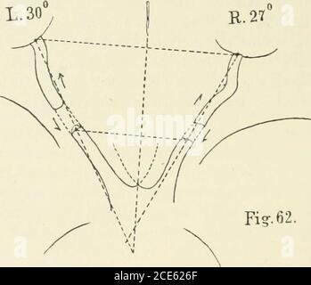 . Beiträge zur Anatomie der Orbita . all etwas, da es nicht ausgemacht ist, wo-durch Hornhautflecken relativ häufig zu Refraktionserhöhungführen. Ist es nur die durch den Hornhautfleck bedingte Schwach-sichtigkeit, welche eine stärkere Annäherung an das betrachteteObjekt nötig macht oder kommt dem Hornhautfleck auch nochdie Bedeutung zu, dass er den Flüssigkeitsaustritt durch die Horn-haut dauernd — wenn auch nur in geringem Grade — behindert ? 126 III. Gruppe.(Nr. 62-88.) Kurzes Abrollungsstück (5,5 Mm. gross und kleiner). BeiBewegungen des Auges wird der Sehnerv meist mehr oderweniger stark - Stock Photo