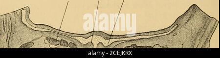 . Handbuch der Laryngologie und Rhinologie ... Fig. 29. Frontalschnitt durch die vordere Nasenhöhlengegend eines 4 Monate altenmenschlichen Embryo. Vergr. 5/l: (Sin. Ala Ocul. sphen.) sphen.. Mi-